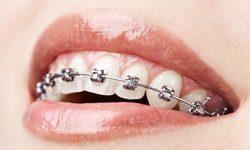 types of braces at cherry orthodontics