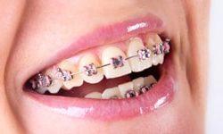 traditional braces schnecksville pa
