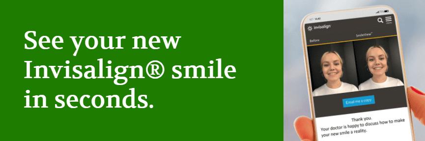 Invisalign smile view