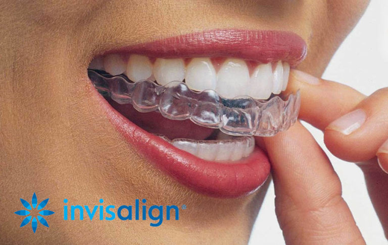 Invisalign SmileView in Lehigh Valley PA