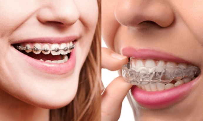 Invisalign® vs. Braces: Which is Better For You?