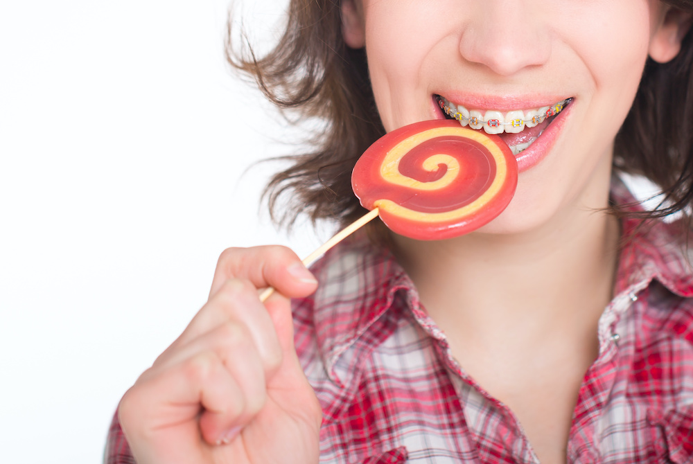 Foods To Avoid With Braces in Lehigh Valley PA